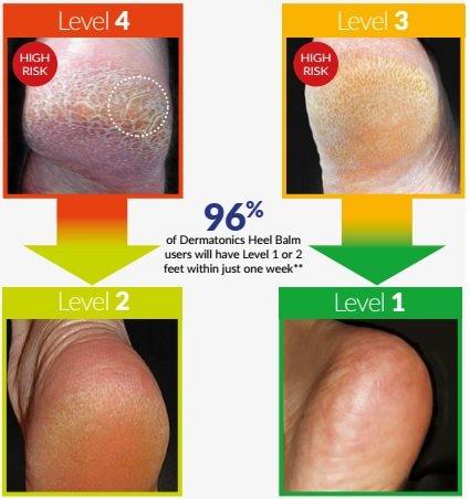 Papēžu krēms Dermatonics HeelBalm 60 ml